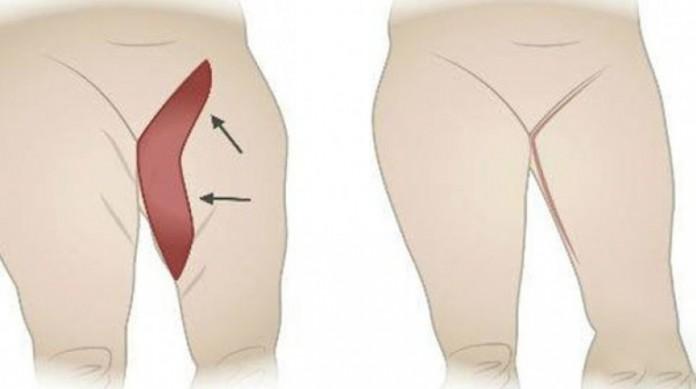 упражнения чтобы убрать жир над коленями