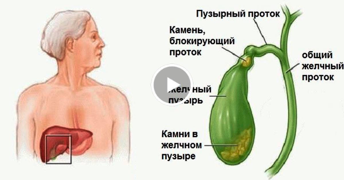 высокий холестерин в крови у женщин